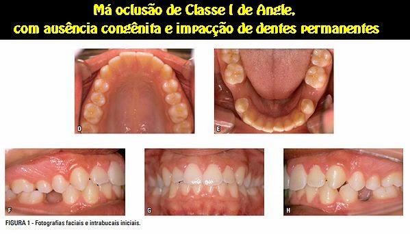 classe-I
