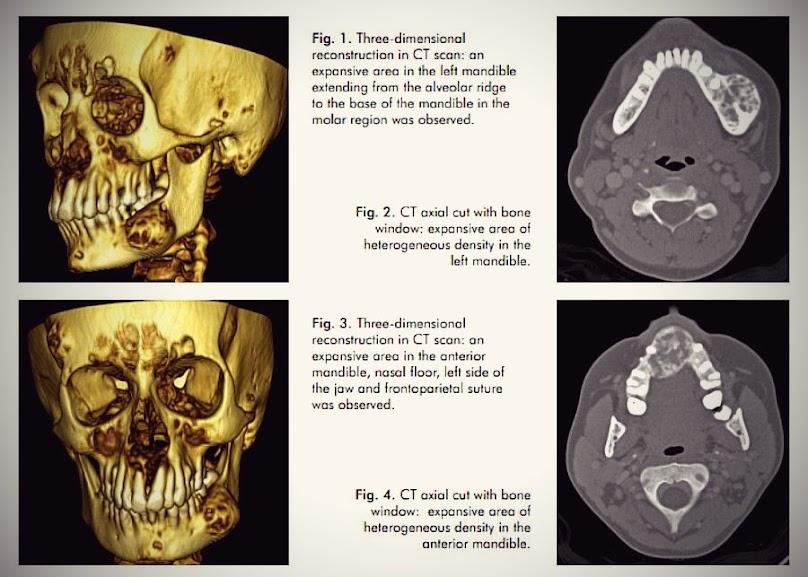 Facial-lesions