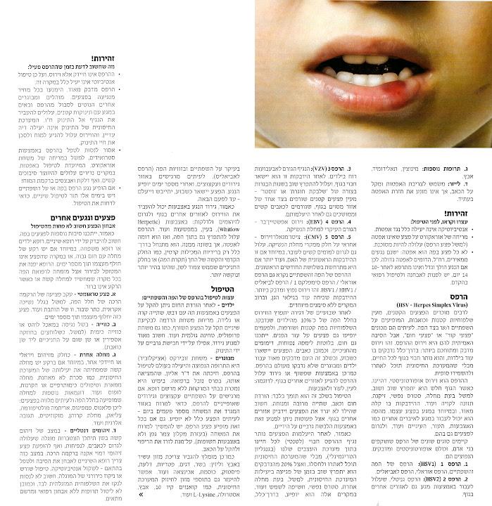 """אפטות, הרפס ופצעים אחרים בפה - ד""""ר גיא וולפין איבחון, טיפול והנחיות זהירות"""