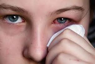 Super Lutein Nutrisi Herbal Konjungtivitis Alergika