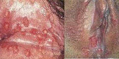 obat lecet di bibir vagina