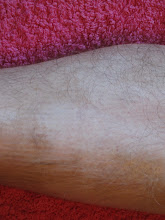 Vitiligo before 1