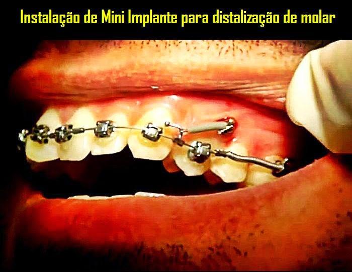 distalização-molar