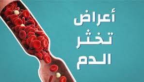 أعشاب طبيعية لمنع سيولة الدم وتخثر الدم