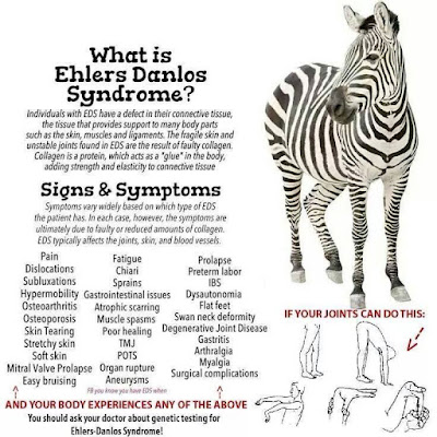 Ehlers Danlos Syndrome, what it is.
