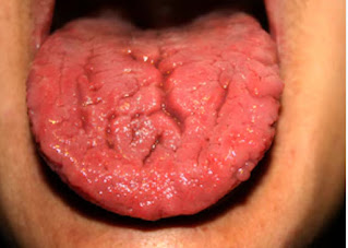 Geographic tongue (Glossitis)-Definition, symptoms and treatment.