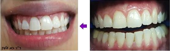 הלבנת שיניים תןך שעה במרפאה ZOOM - גיא וולפין, אסתטיקה דנטלית