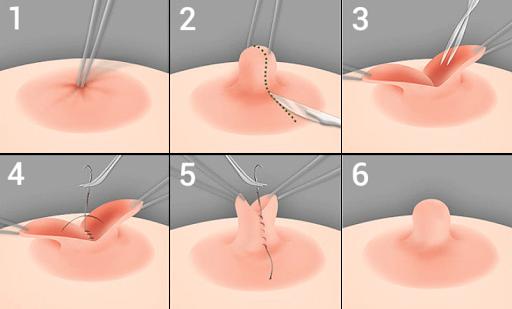Le piercing tton, piercing de sein ou piercing mamelon 3
