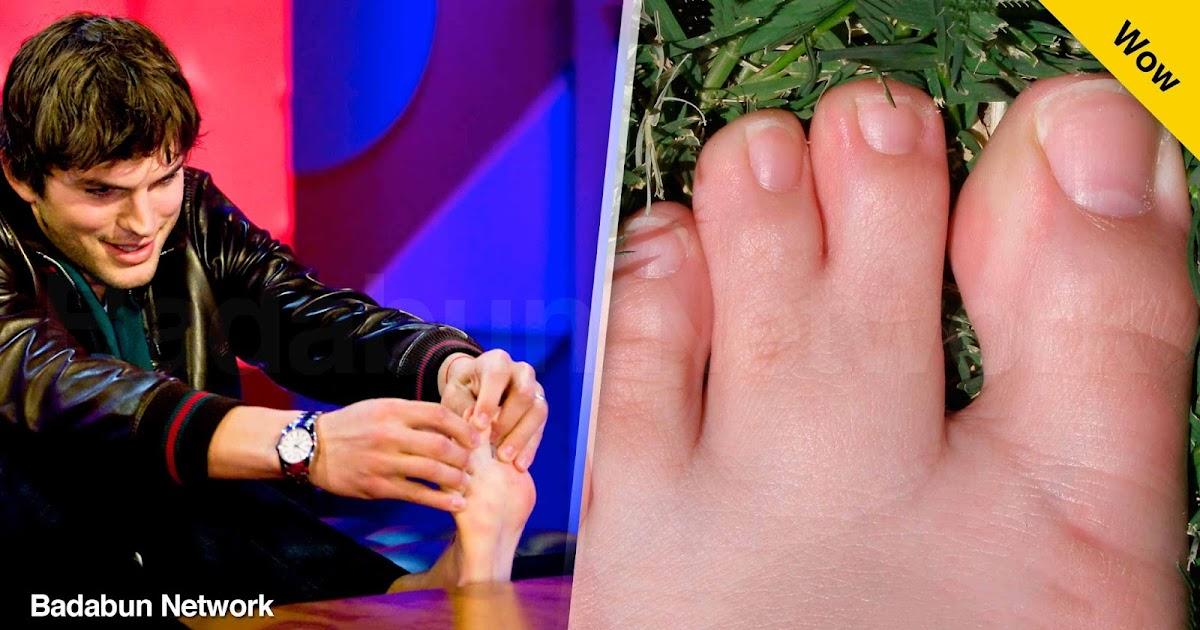 deformidades seis dedos heterocromia famosos selena gomez gerard Butler kesha Sarah mcdaniel