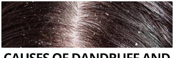 Causes of Dandruff and Natural Ingredients To Overcome It