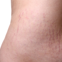 How To Prevent Stretch Marks Naturally post image
