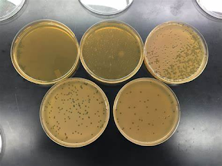 plaque assay for bacteriophages