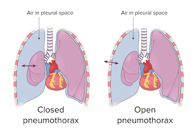 air in lungs making difficult breathing