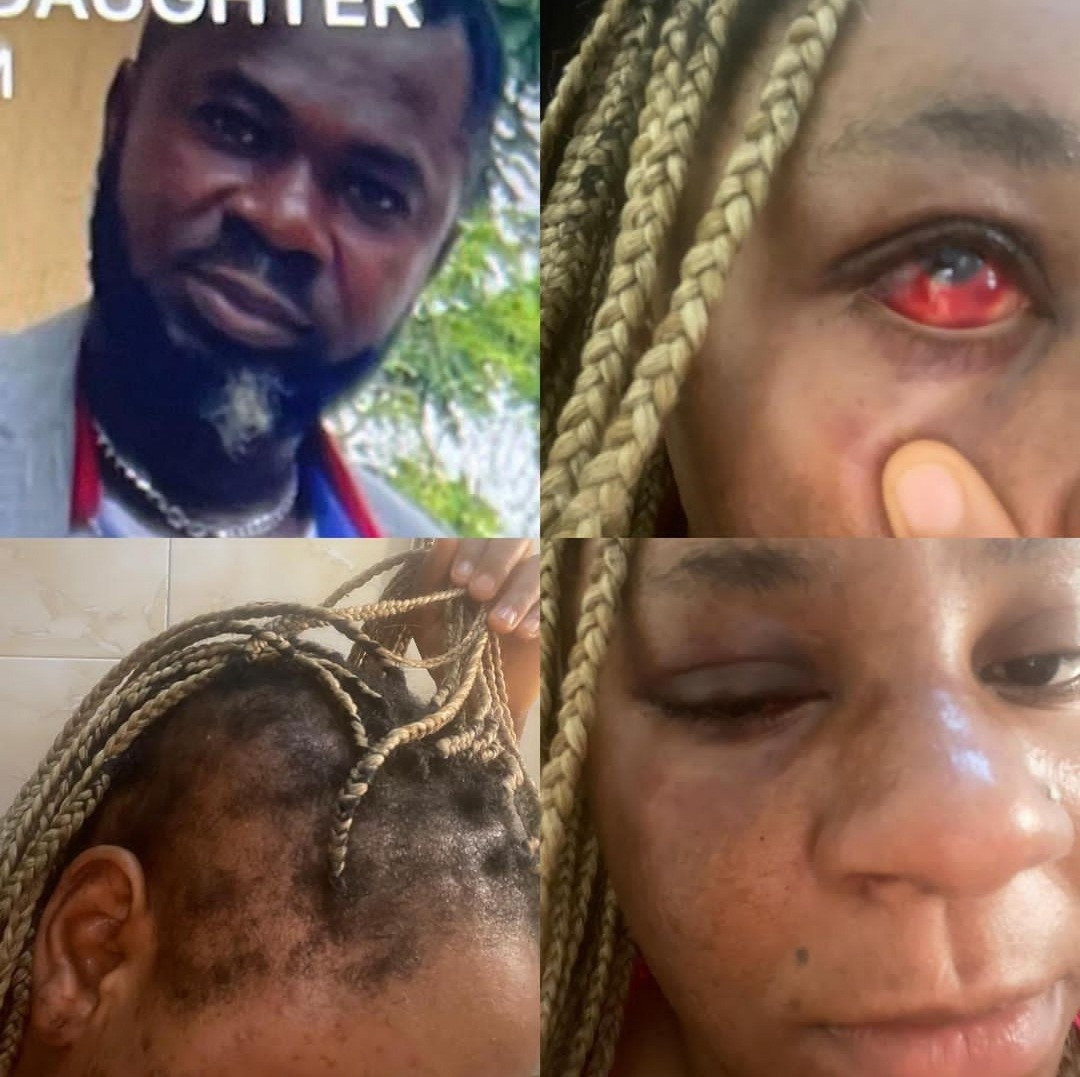 Speed Darlington accuses his sister's husband of brutalising her (photos)