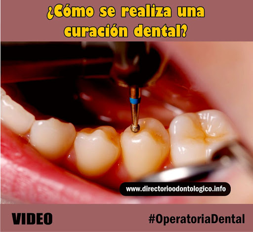 Curación Dental