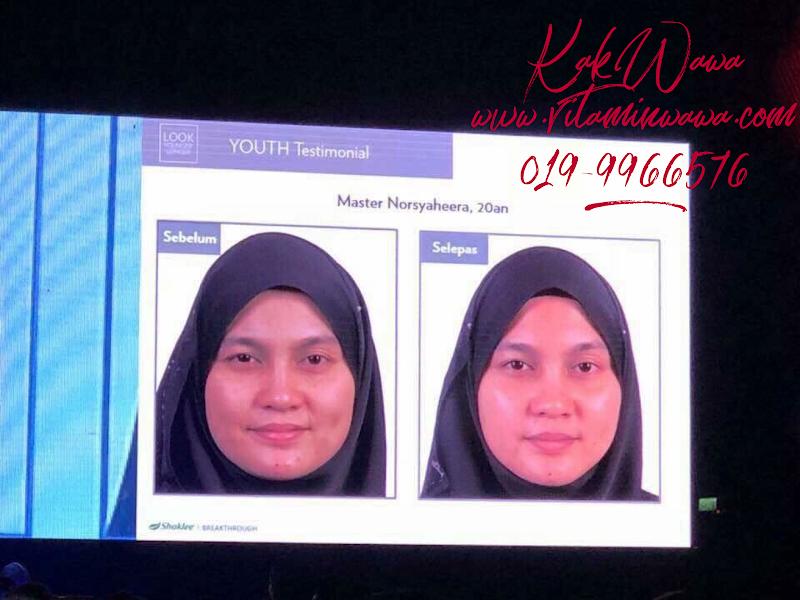 Testimoni Youth Skincare Shaklee Dari Orang Malaysia