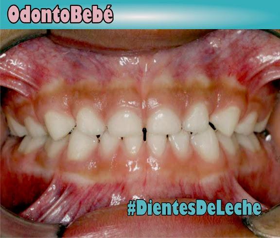 denticion-decidua