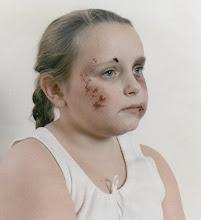 Facial Injuries-2