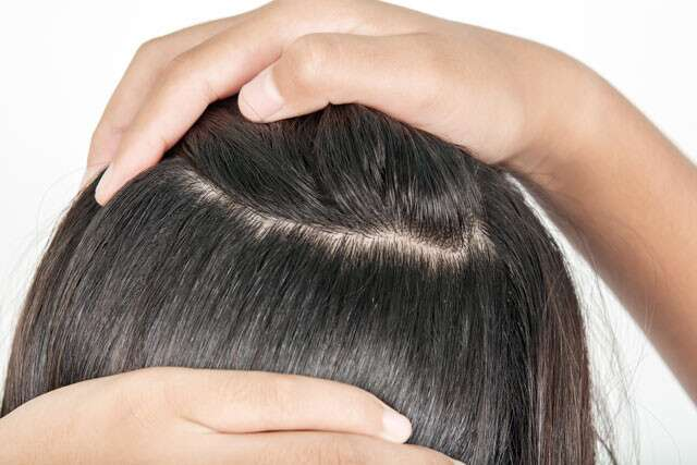ما هي كثافة الشعر وكيف يتم قياسها؟