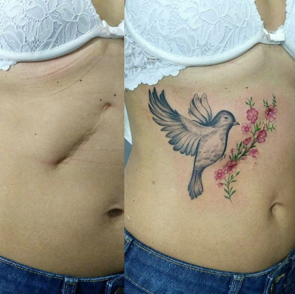 esta_cicatriz_profunda-esconder_tatuagem