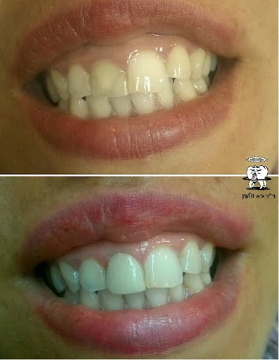 """ציפוי קומפוזיט לשן שהשחירה לאחר טיפול שורש, ד""""ר גיא וולפין, אסתטיקה דנטלית"""