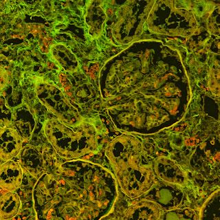 An animal tissue section - Confocal image. LSM 510. Imaged by Kandasamy, BMC.