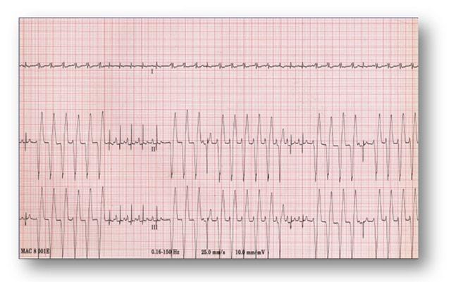 [elettrocardiogramma-cane+%281%29+%281%29%5B3%5D]