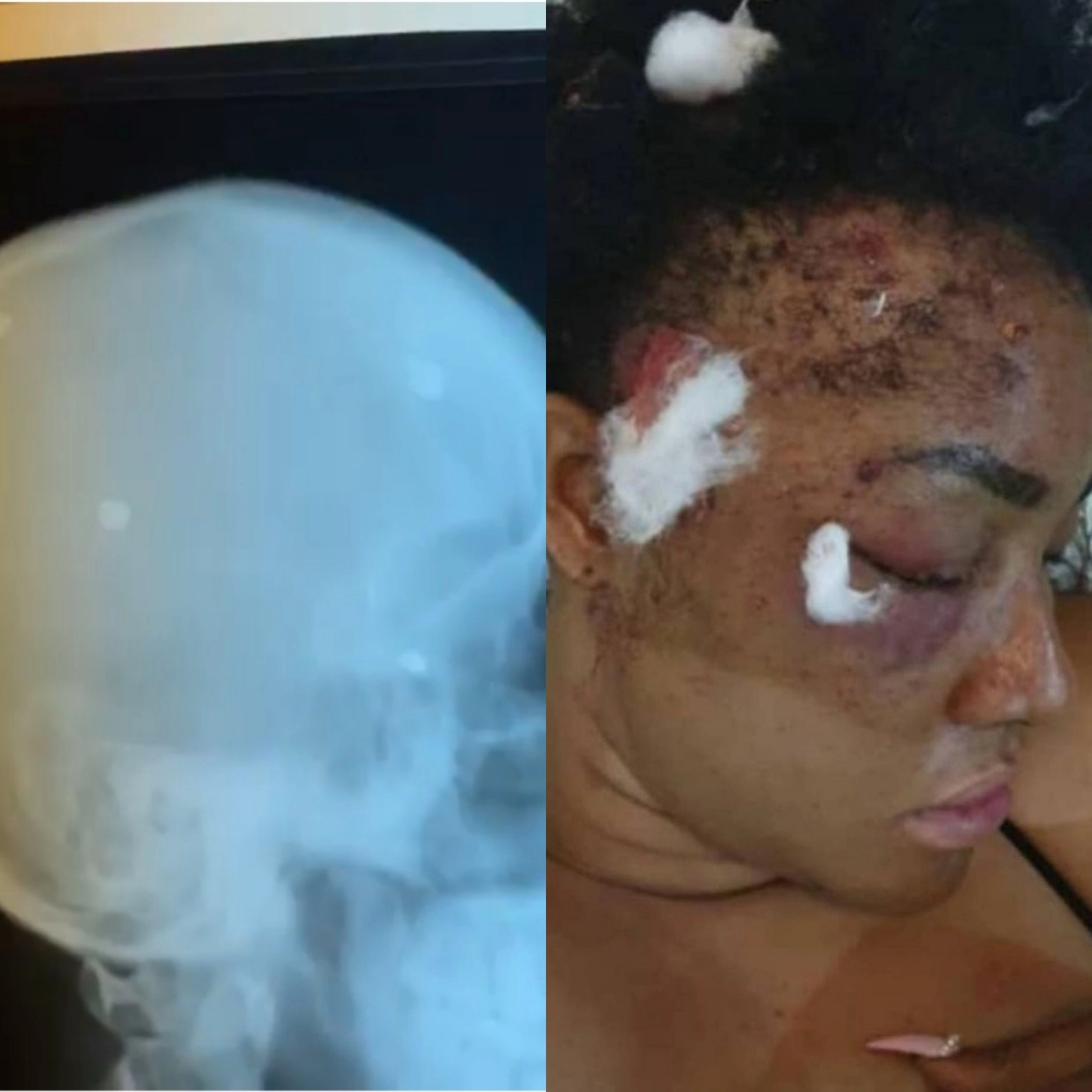 """""""After 2 years plus, pellets are still coming out"""" Actress, Angel Okorie shows X-ray of her head years after she was shot (video)"""