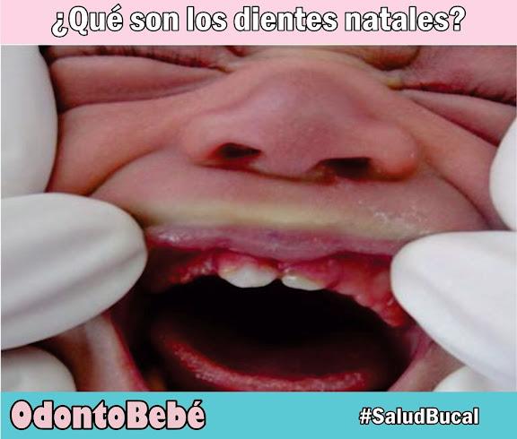 dientes-natales
