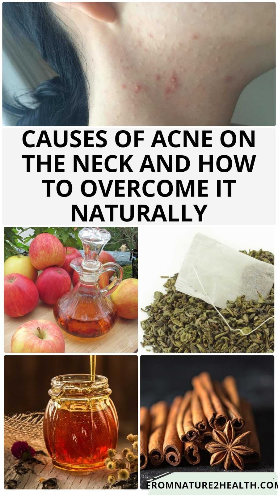 Causes of Acne on the Neck and How to Overcome It Naturally