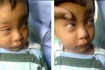 Keseringan Main Hp, Mata Bocah Asal Makassar Mengidap Penyakit Mata Ini