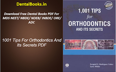 1001 Tips For Orthodontics And Its Secrets PDF