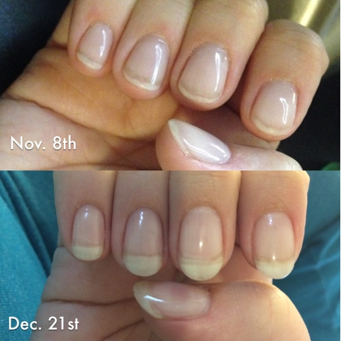 Then I Heard About Acrygel And How It Could Help You Grow Your Natural Nails With Minimal Damage To Nail Decided Give At A Try 6