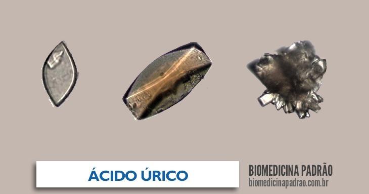 ácido úrico