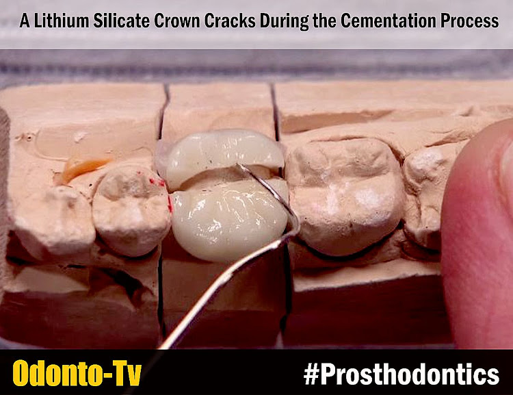 Lithium-Silicate-Crown-Cracks