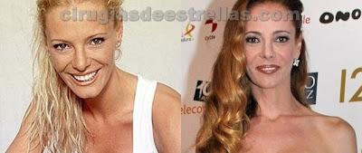 Paula Vazquez antes y despues