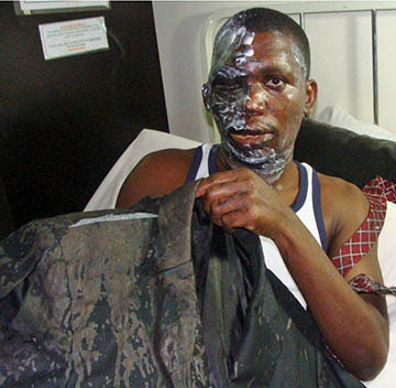 Bishop Umar Mulinde, 37, after acid attack. Photo Credit Compass Direct News.