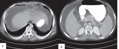 diagnos of mesothelioma