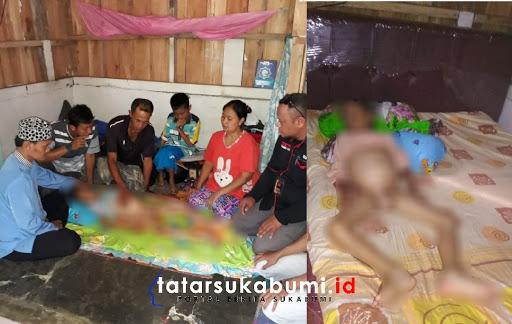 Miris, Perut Bocah 10 Tahun Asal Sukabumi Membuncit