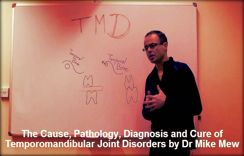 temporomandibular-joint-disorders