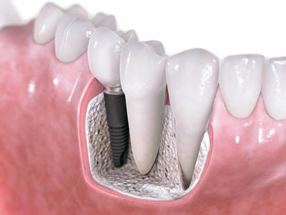 Benefits of dental implants and how they are performed 1