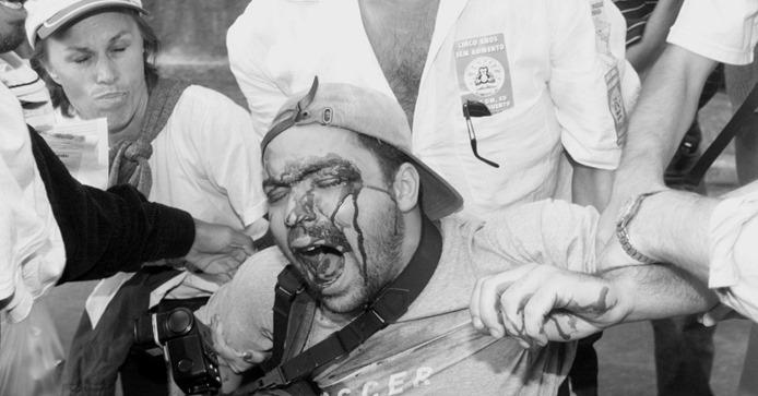 Fotógrafo vítima de bala perdida