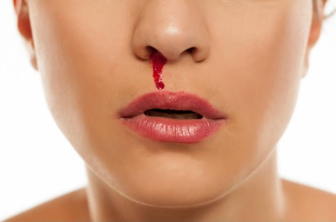 What Causes Nosebleeds and How to Treat.
