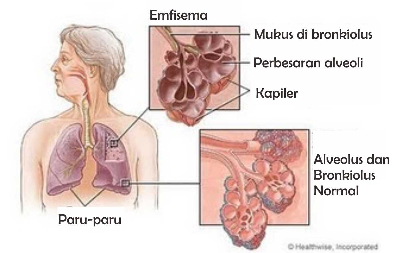 Tothepoint Kelainan Dan Gangguan Sistem Pernapasan Manusia Alat Cuci Hidung Untuk Penderita Sinus Peradangan Sudah Termasuk Garam Pharmasalt
