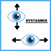 Nystagmus (Dancing Eyes) : Types, Symptoms, Causes, Treatment & Prevention.