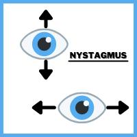 Nystagmus eye, involuntary eye movements, vertical - horizontal nystagmus, eye condition