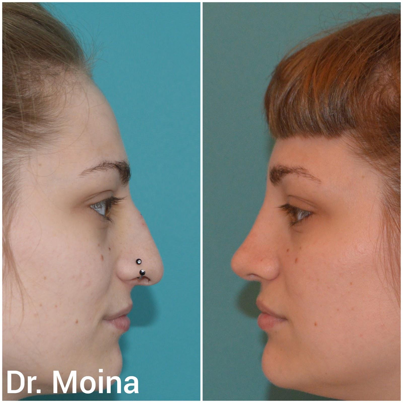 rinoplastia punta de nariz caida