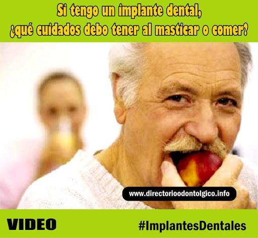 implantes-dentales-cuidados