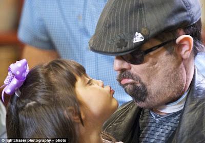 昨年3月に米国初の全顔面移植手術を受けた男性と娘