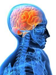 Pengobatan alami stroke